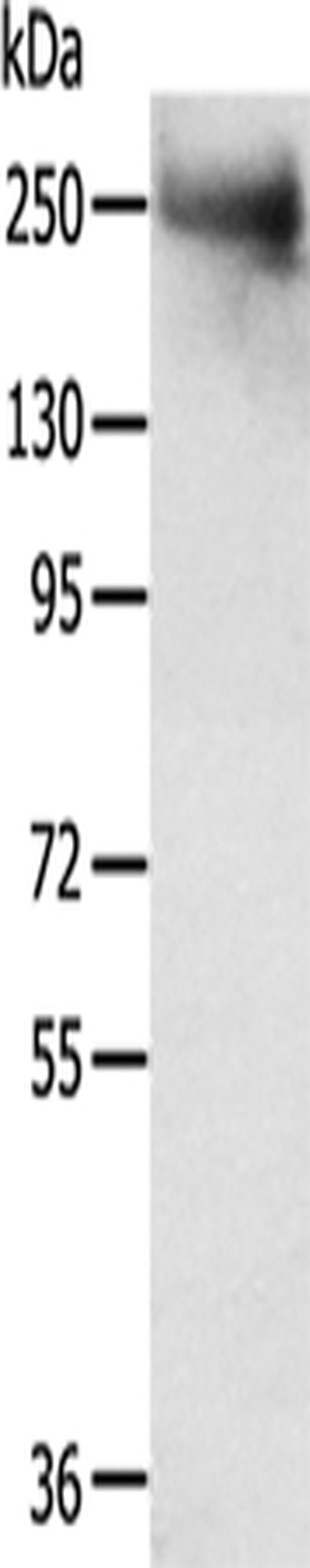 TACC2 Rabbit anti-Human, Mouse, Polyclonal, Invitrogen 100 µL; Unconjugated