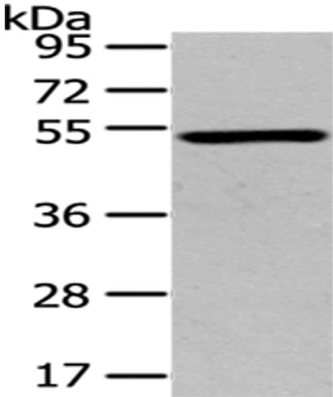 TSPYL1 Rabbit anti-Human, Mouse, Polyclonal, Invitrogen 100 µL; Unconjugated