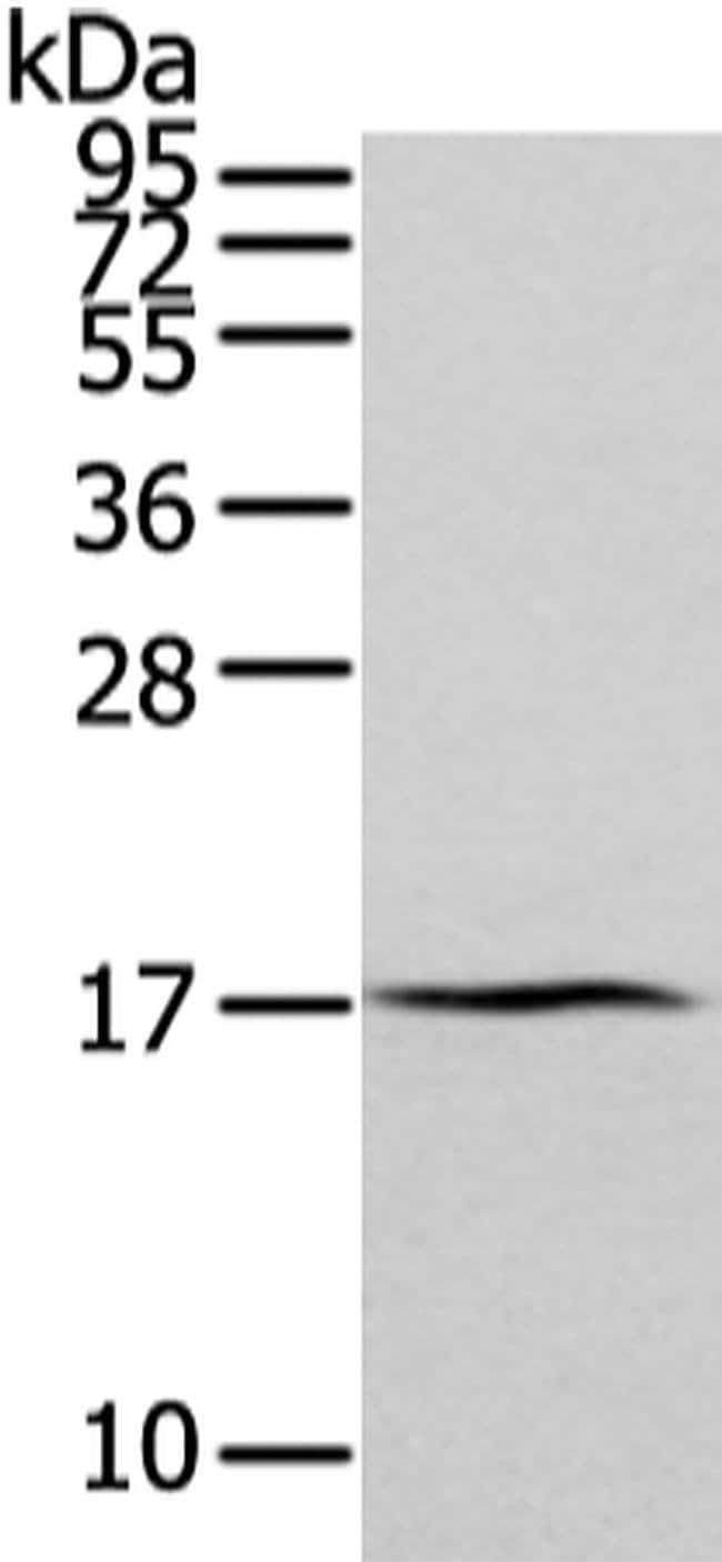 ZFAND2A Rabbit anti-Human, Polyclonal, Invitrogen 100 µL; Unconjugated