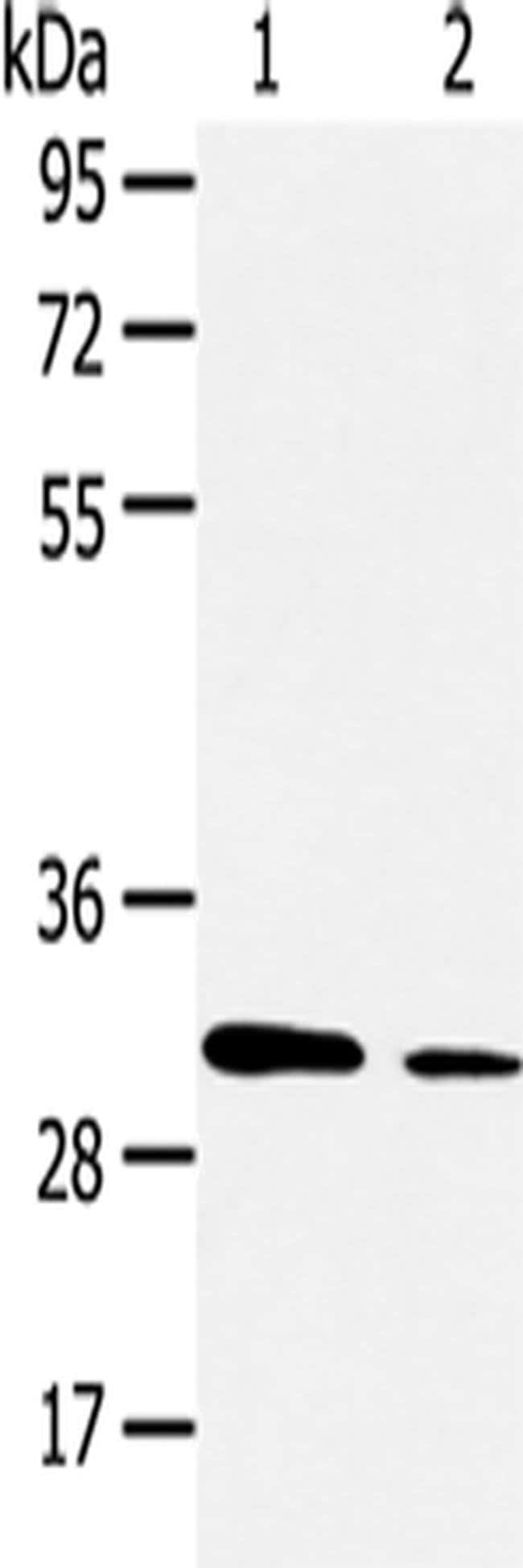 Aquaporin 9 Rabbit anti-Human, Polyclonal, Invitrogen 100 µL; Unconjugated