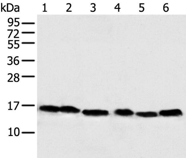 NDUFB6 Rabbit anti-Human, Polyclonal, Invitrogen 100 µL; Unconjugated