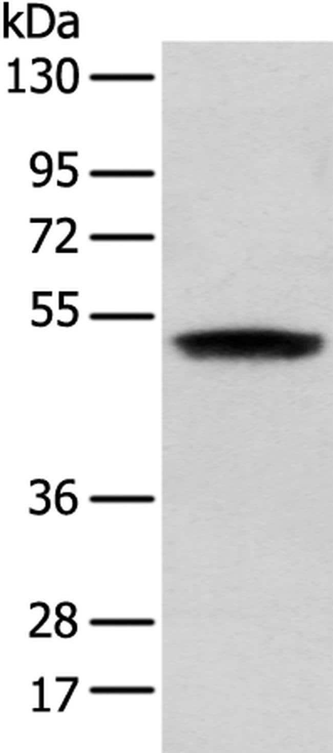 ZNF621 Rabbit anti-Human, Polyclonal, Invitrogen 100 µL; Unconjugated