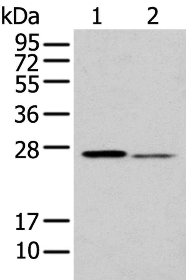 GSTM2 Rabbit anti-Human, Mouse, Polyclonal, Invitrogen 100 µL; Unconjugated