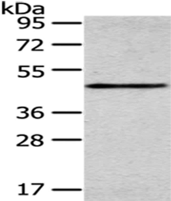 SMYD2 Rabbit anti-Human, Mouse, Rat, Polyclonal, Invitrogen 100 µL;