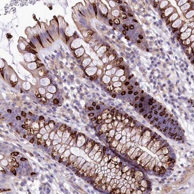 FCHSD2 Rabbit anti-Human, Polyclonal, Invitrogen™ 100 μL; Unconjugated Products