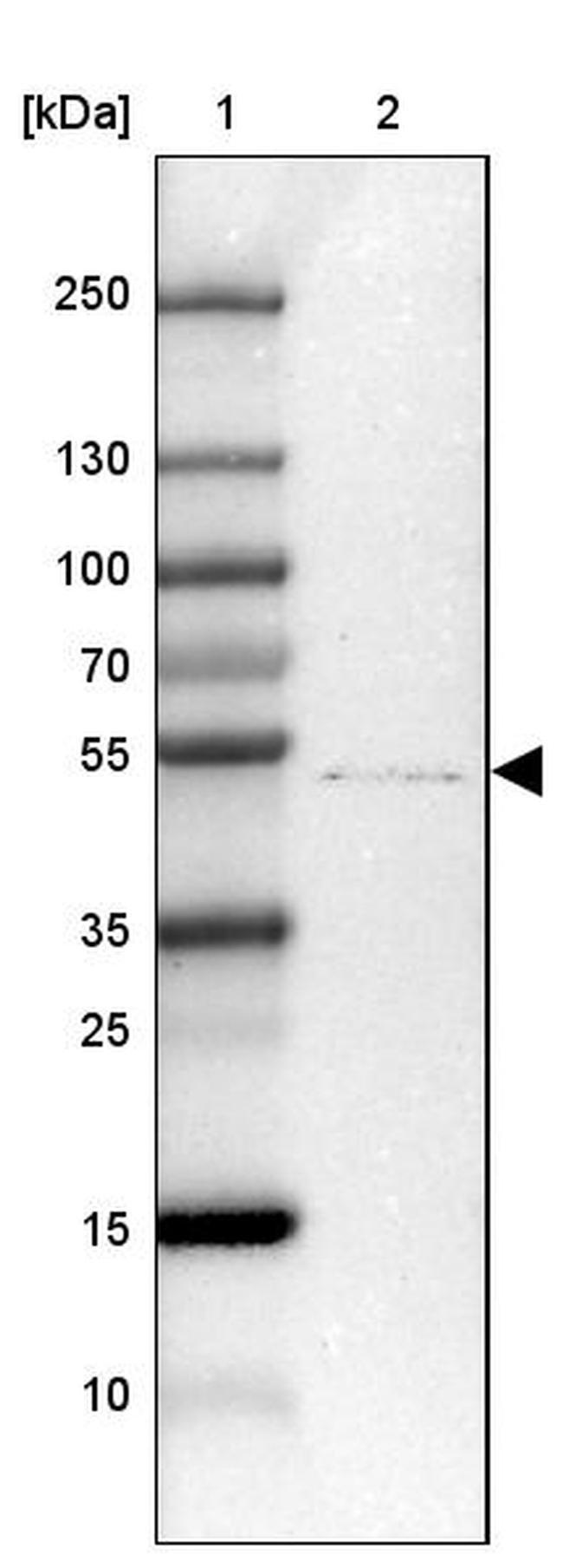 ZDHHC1 Rabbit anti-Human, Polyclonal, Invitrogen 100 µL; Unconjugated