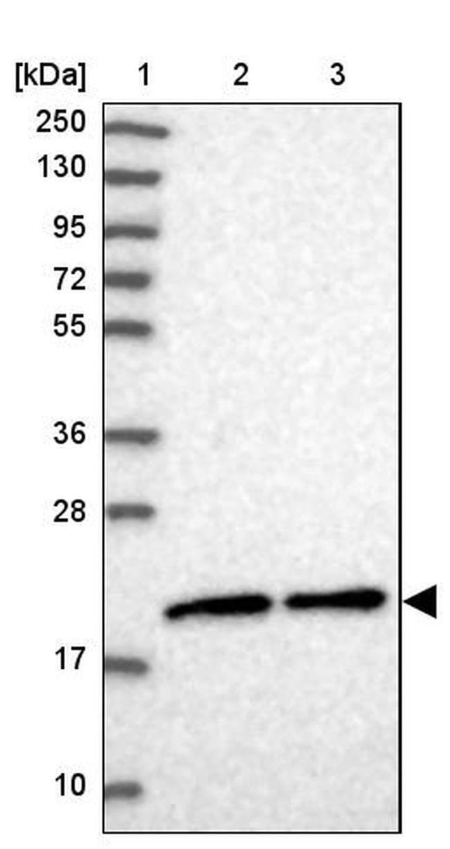 MRPS25 Rabbit anti-Human, Polyclonal, Invitrogen™ 100 μL; Unconjugated Primary Antibodies Mo to Mu