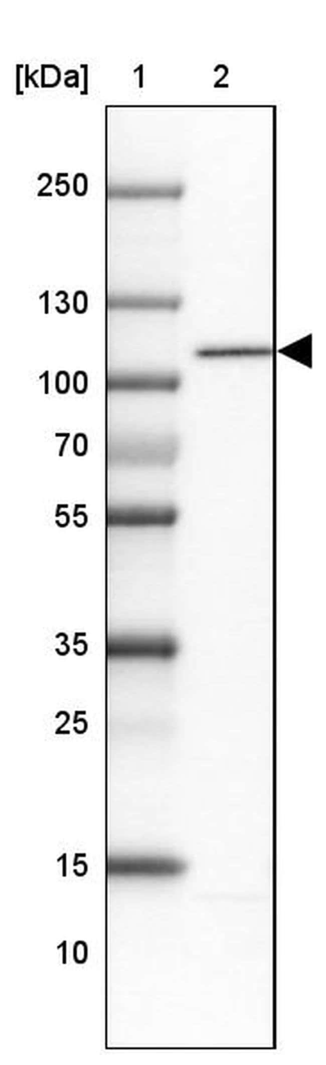 WBP11 Rabbit anti-Human, Polyclonal, Invitrogen 100 µL; Unconjugated