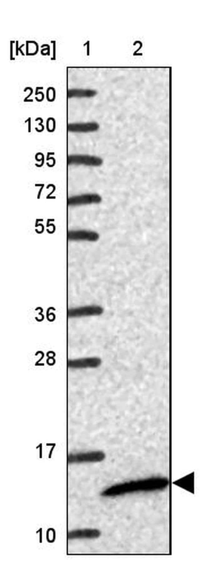FMC1 Rabbit anti-Human, Polyclonal, Invitrogen 100 µL; Unconjugated