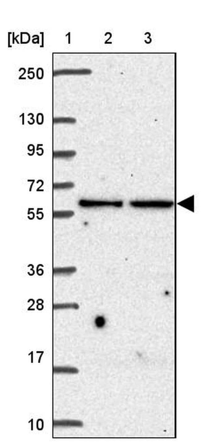 Elastin Rabbit anti-Human, Polyclonal, Invitrogen 100 µL; Unconjugated