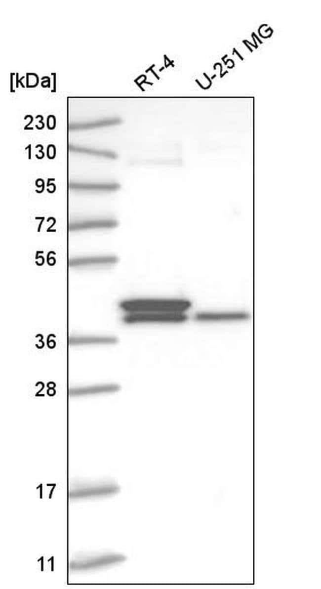 TFB2M Rabbit anti-Human, Polyclonal, Invitrogen 100 µL; Unconjugated