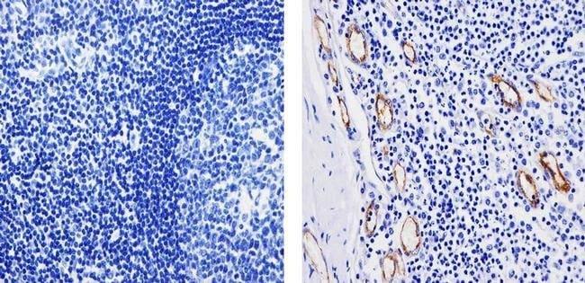 VWF Rabbit anti-Human, Mouse, Polyclonal, Invitrogen™ 500 μL; Unconjugated Primary Antibodies V