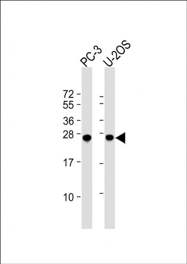 ZCCHC17 Rabbit anti-Human, Mouse, Polyclonal, Invitrogen 400 µL; Unconjugated