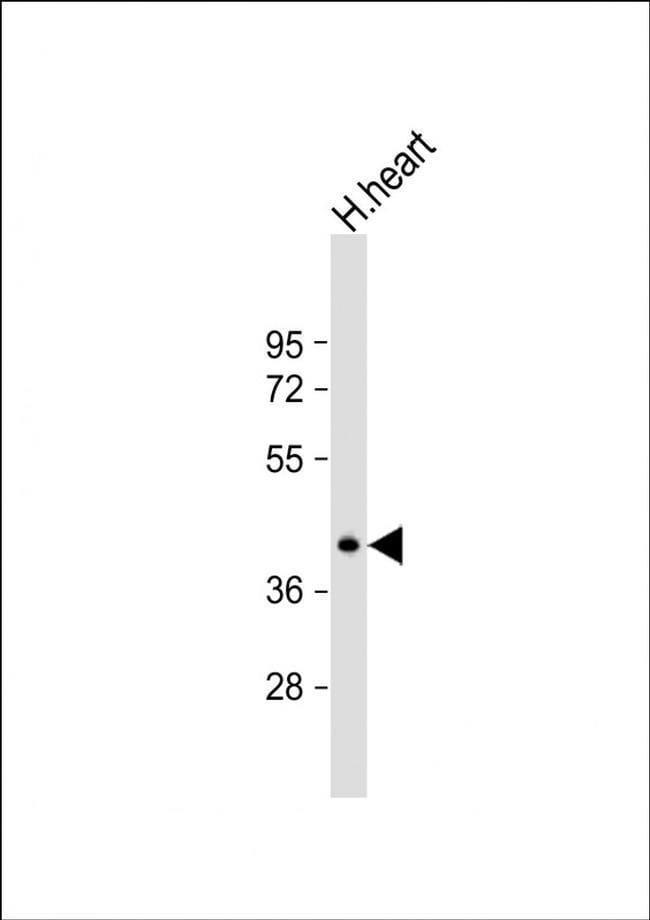 NAA30 Rabbit anti-Human, Mouse, Polyclonal, Invitrogen 400 µL; Unconjugated