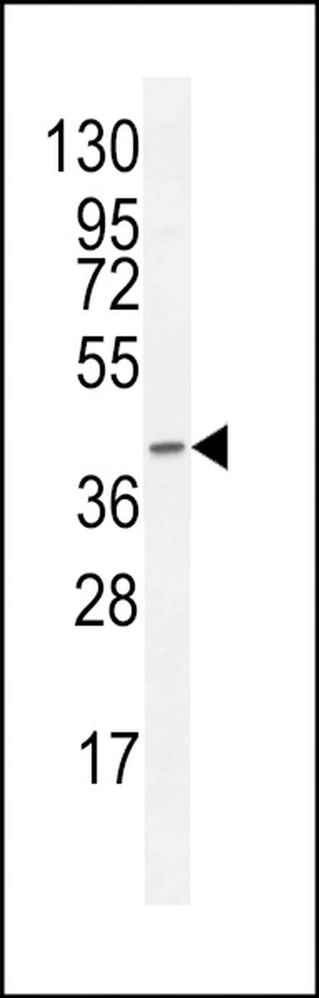 F8A1 Rabbit anti-Human, Polyclonal, Invitrogen 400 µL; Unconjugated