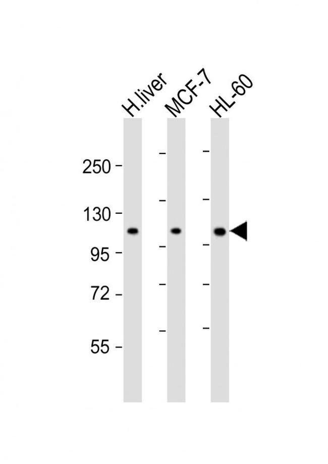 RSBN1 Rabbit anti-Human, Polyclonal, Invitrogen 400 µL; Unconjugated