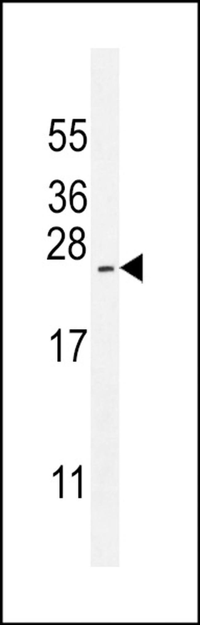 ARL17A Rabbit anti-Human, Polyclonal, Invitrogen 400 µL; Unconjugated