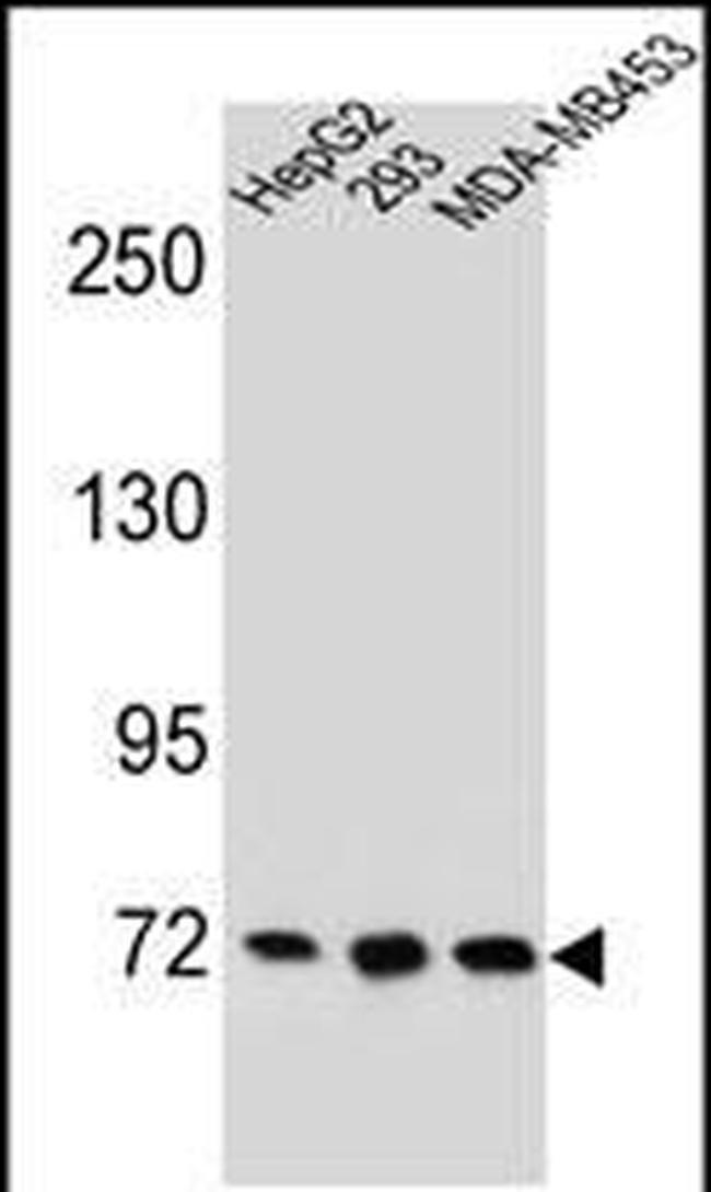 ZNF860 Rabbit anti-Human, Polyclonal, Invitrogen 400 µL; Unconjugated
