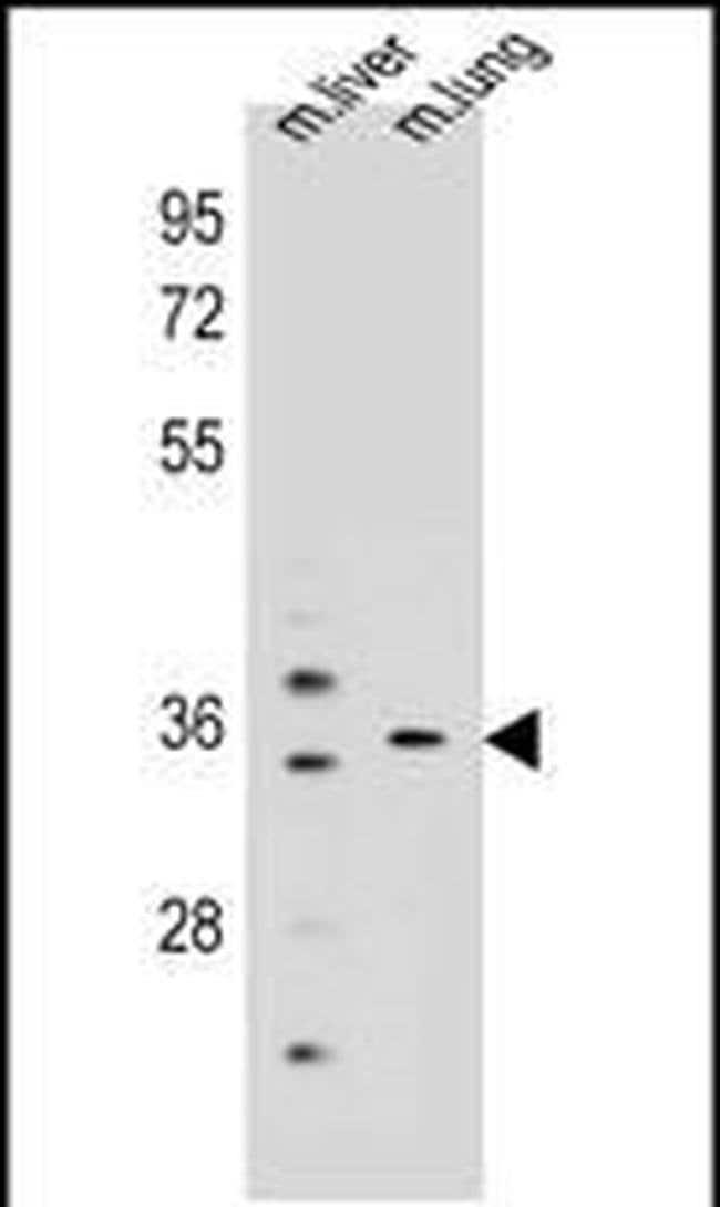 KCNRG Rabbit anti-Human, Mouse, Polyclonal, Invitrogen 400 µL; Unconjugated