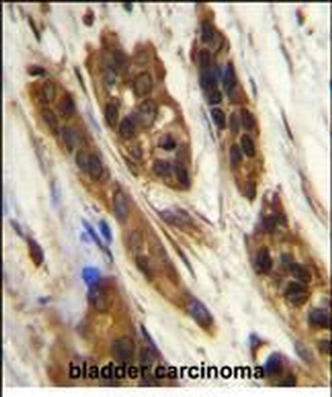 SNRNP27 Rabbit anti-Human, Mouse, Polyclonal, Invitrogen 400 µL; Unconjugated