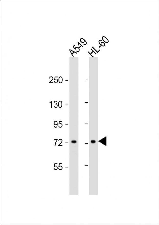 VWA2 Rabbit anti-Human, Polyclonal, Invitrogen 400 µL; Unconjugated