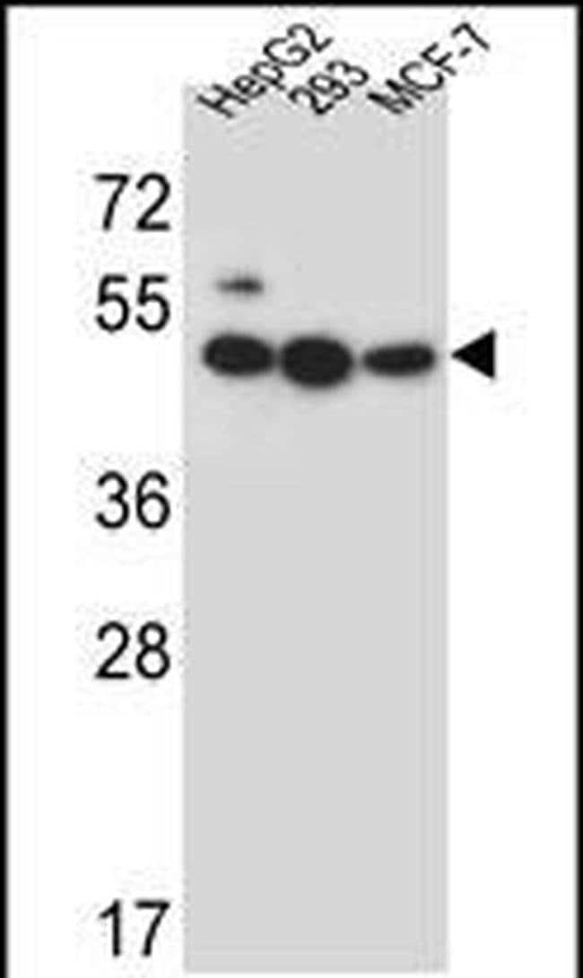 LIPJ Rabbit anti-Human, Polyclonal, Invitrogen 400 µL; Unconjugated