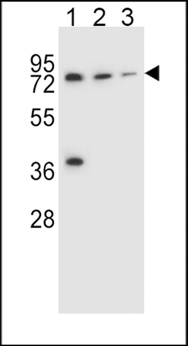 UGT2B15 Rabbit anti-Human, Polyclonal, Invitrogen 400 µL; Unconjugated