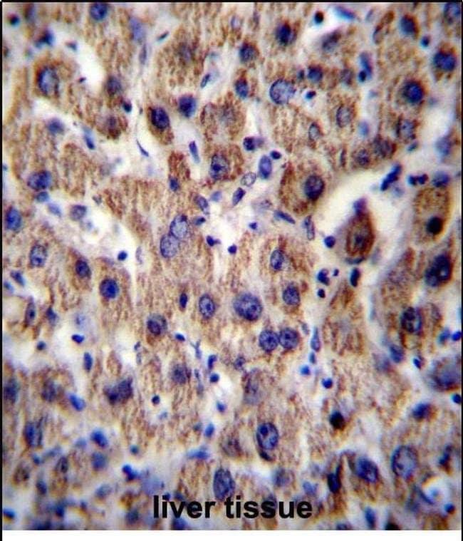 ATP5J Rabbit anti-Human, Mouse, Rat, Polyclonal, Invitrogen 400 µL;