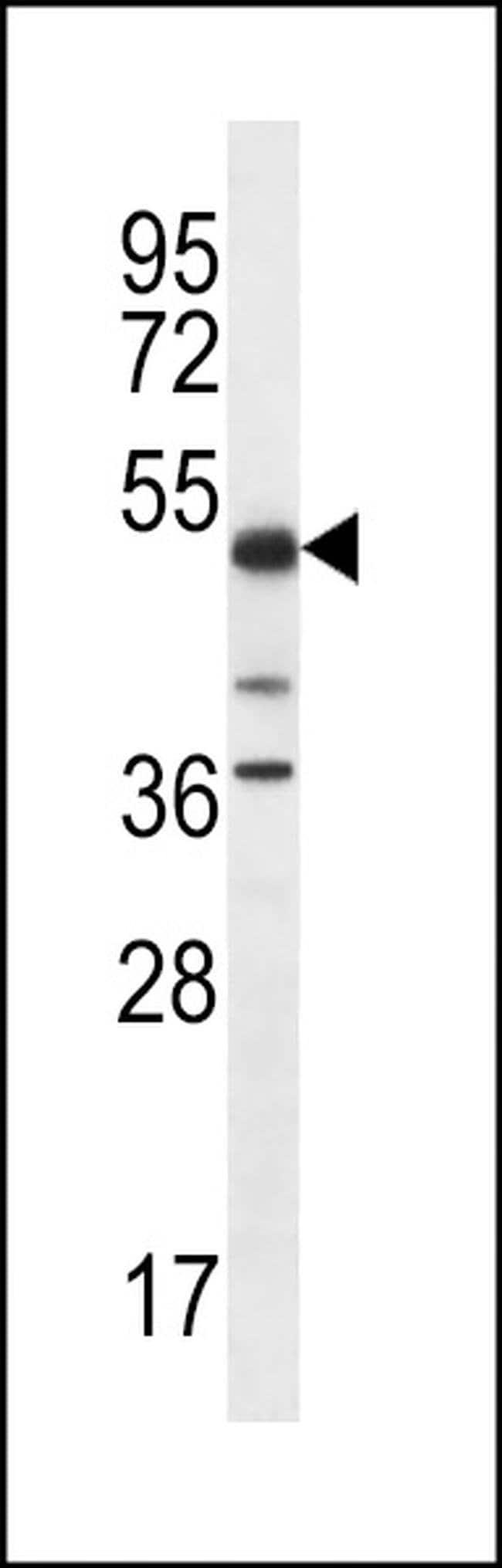 PSTPIP1 Rabbit anti-Human, Polyclonal, Invitrogen 400 µL; Unconjugated