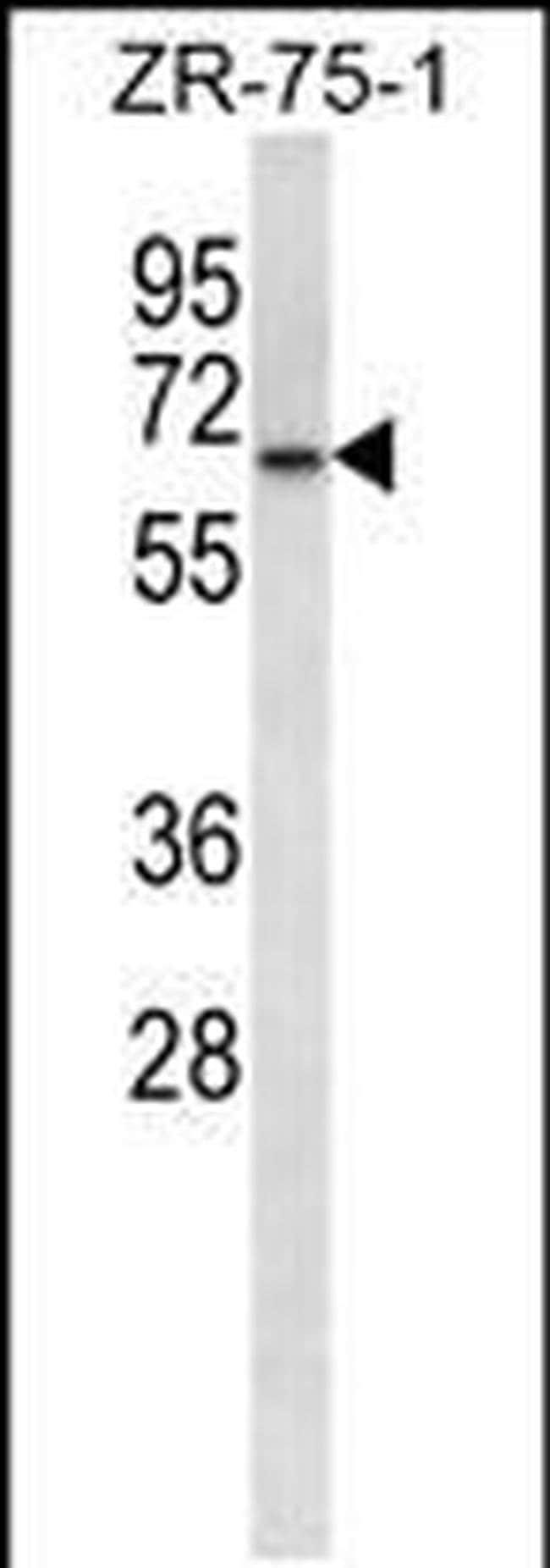 GPD2 Rabbit anti-Human, Polyclonal, Invitrogen 400 µL; Unconjugated