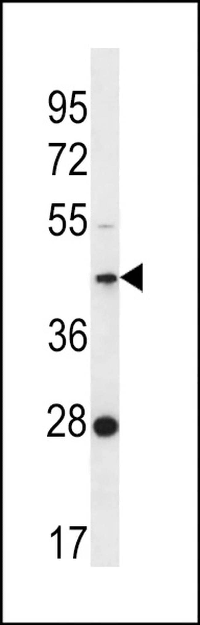 FAM105A Rabbit anti-Human, Polyclonal, Invitrogen 400 µL; Unconjugated