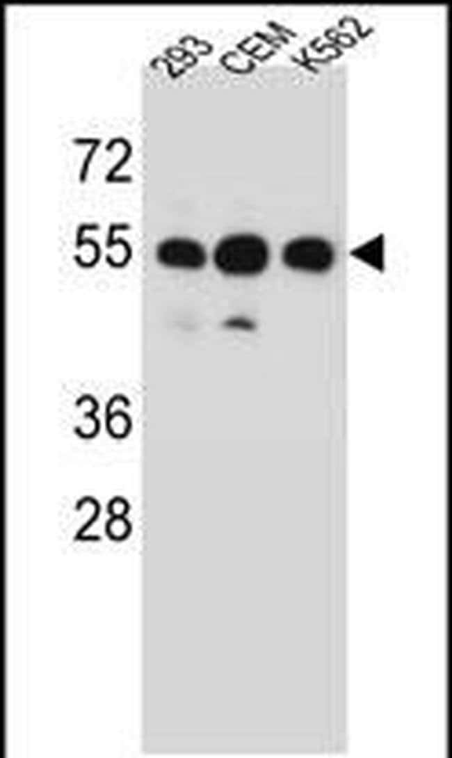 ZNF562 Rabbit anti-Human, Polyclonal, Invitrogen 400 µL; Unconjugated