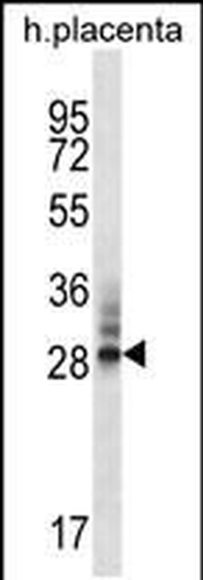 DNAJC27 Rabbit anti-Human, Polyclonal, Invitrogen 400 µL; Unconjugated