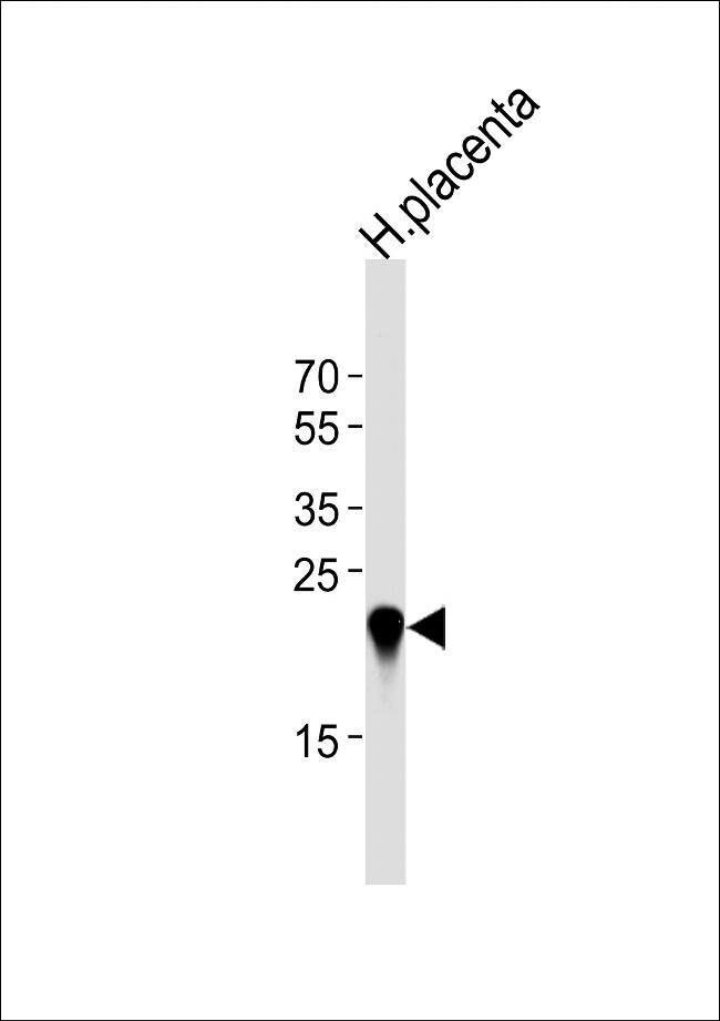 CSHL1 Rabbit anti-Human, Polyclonal, Invitrogen 400 µL; Unconjugated
