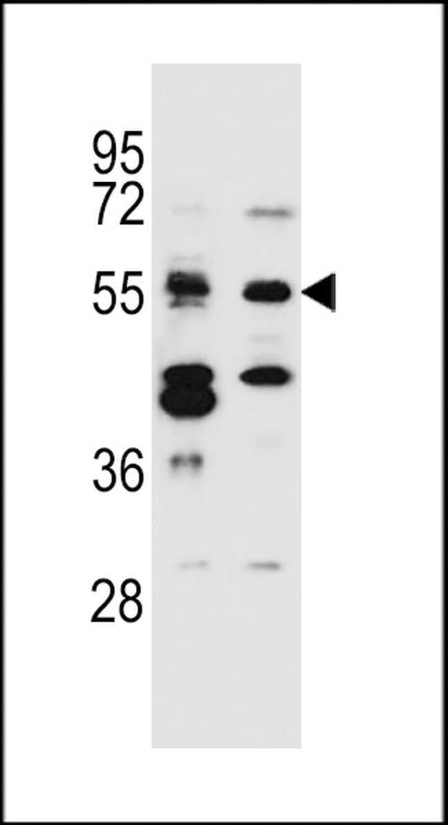 TNRC4 Rabbit anti-Human, Polyclonal, Invitrogen 400 µL; Unconjugated