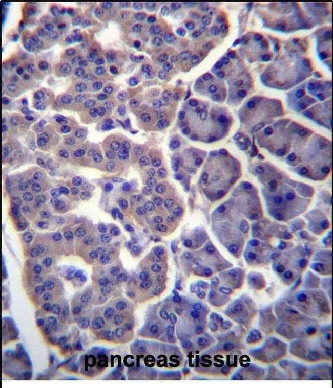 TM9SF2 Rabbit anti-Human, Polyclonal, Invitrogen 400 µL; Unconjugated