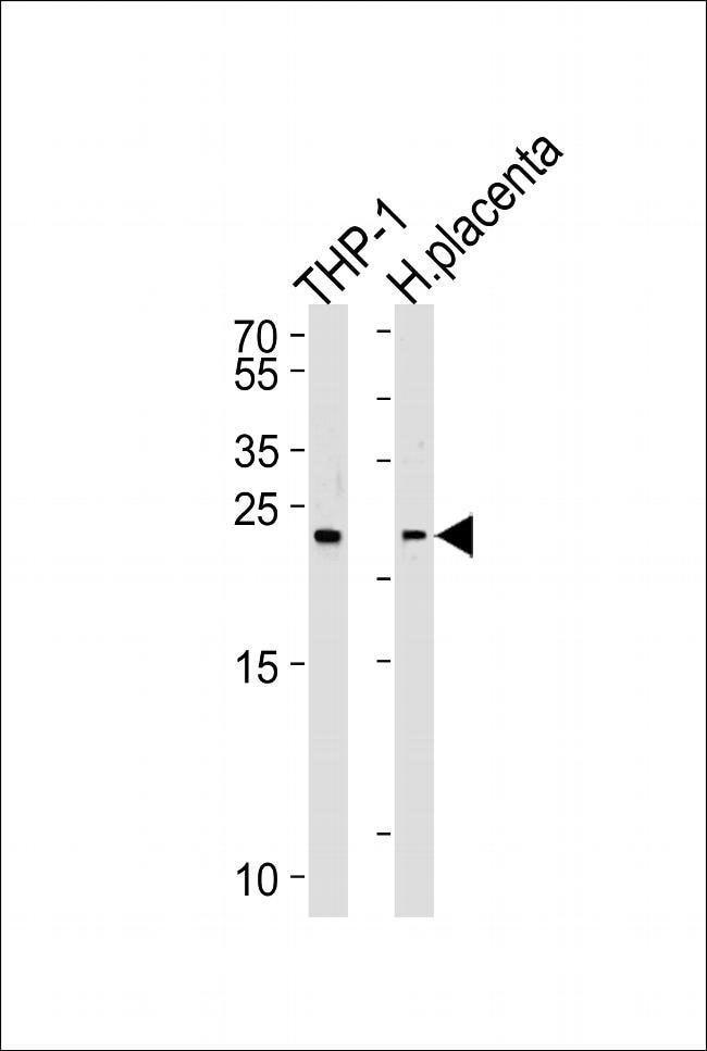 HEBP2 Rabbit anti-Human, Polyclonal, Invitrogen 400 µL; Unconjugated