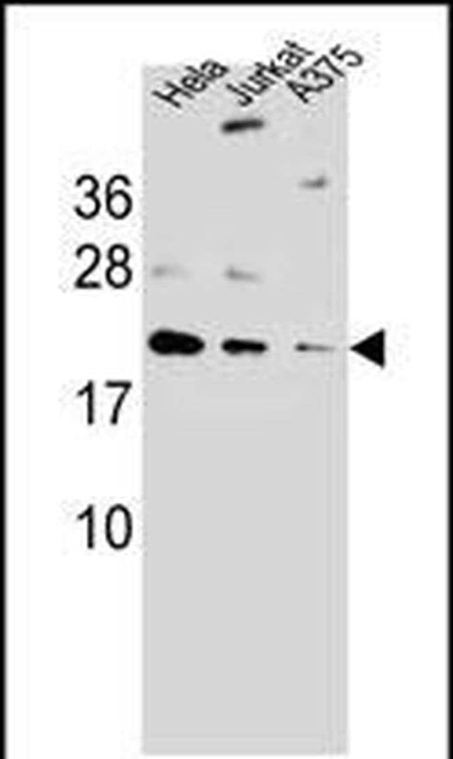 ARL6IP6 Rabbit anti-Human, Polyclonal, Invitrogen 400 µL; Unconjugated