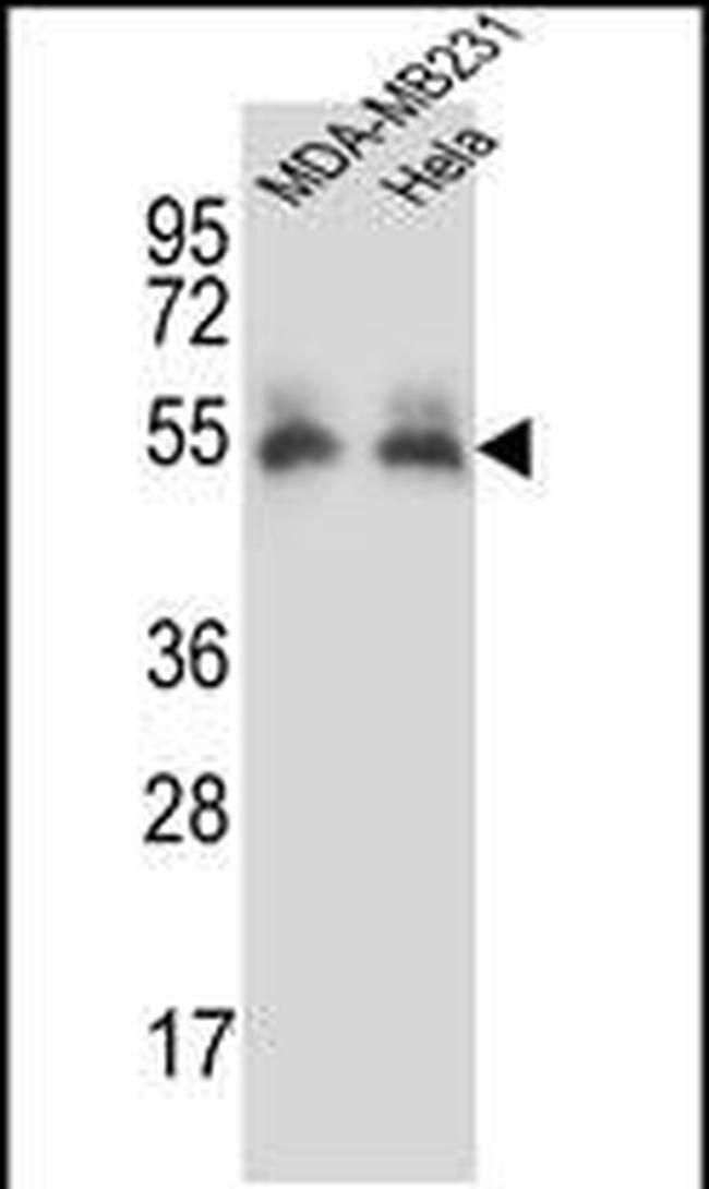 PRCP Rabbit anti-Human, Polyclonal, Invitrogen 400 µL; Unconjugated