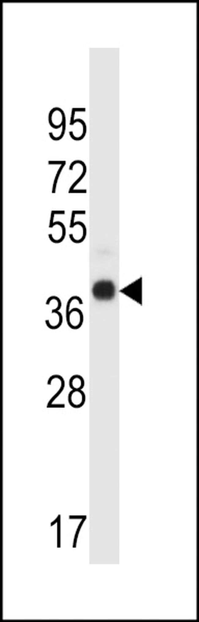 WDR89 Rabbit anti-Human, Polyclonal, Invitrogen 400 µL; Unconjugated