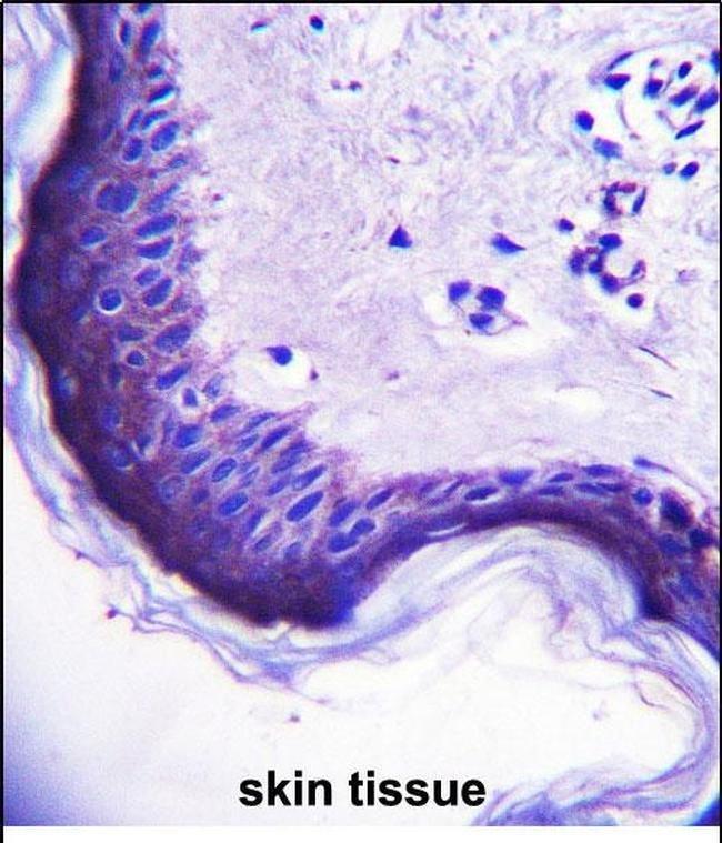 ERV3 Rabbit anti-Human, Polyclonal, Invitrogen 400 µL; Unconjugated
