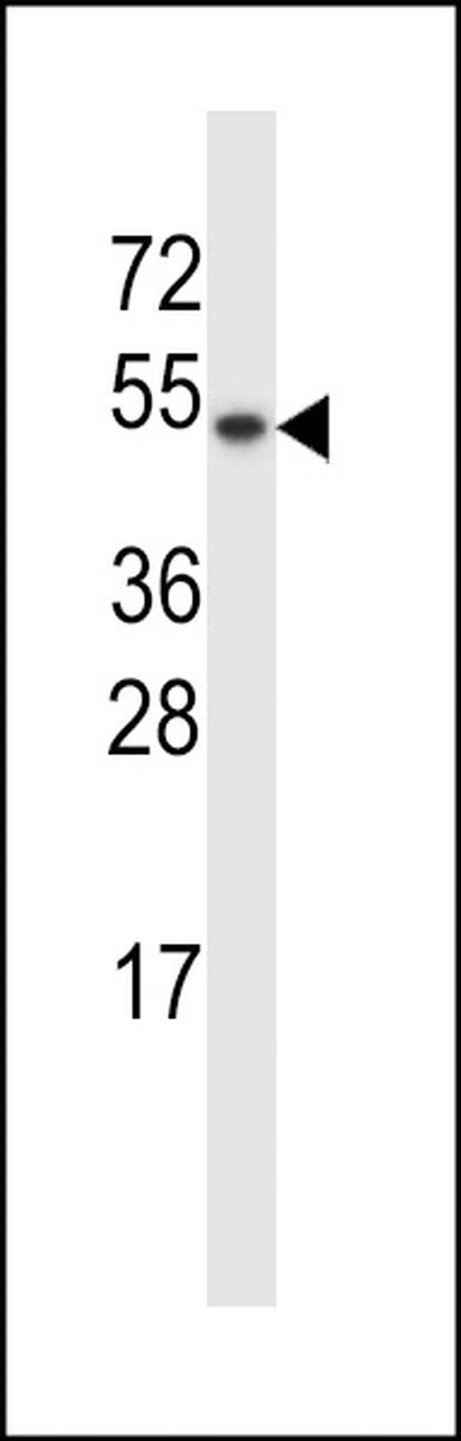 TXNDC15 Rabbit anti-Human, Polyclonal, Invitrogen 400 µL; Unconjugated