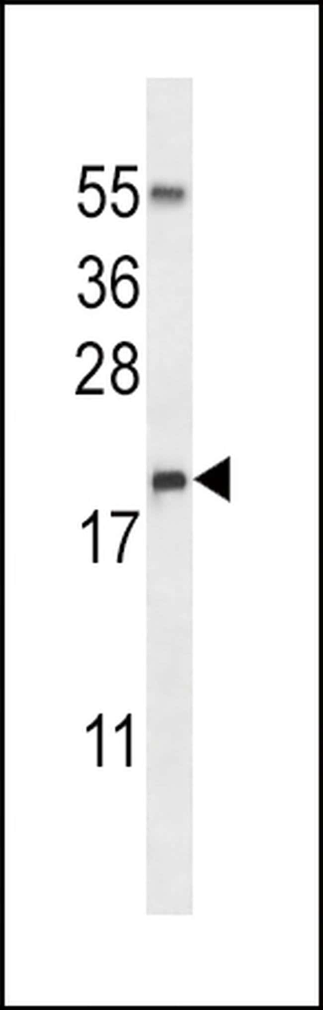RNASE3 Rabbit anti-Human, Polyclonal, Invitrogen 400 µL; Unconjugated
