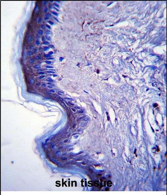 RHBDF2 Rabbit anti-Human, Polyclonal, Invitrogen 200µl; Unconjugated