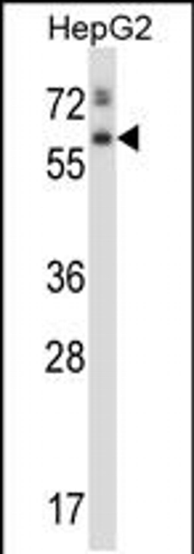 ASPG Rabbit anti-Human, Polyclonal, Invitrogen 400 µL; Unconjugated