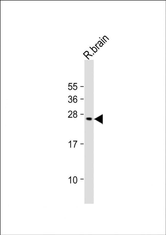 VKORC1L1 Rabbit anti-Human, Mouse, Rat, Polyclonal, Invitrogen 400 µL;