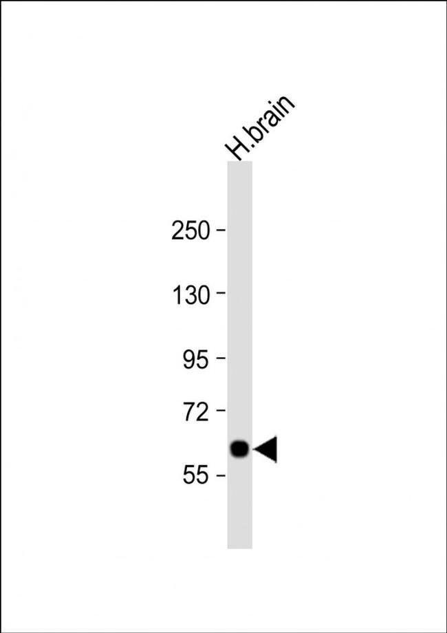 SLC2A13 Rabbit anti-Human, Polyclonal, Invitrogen 400 µL; Unconjugated