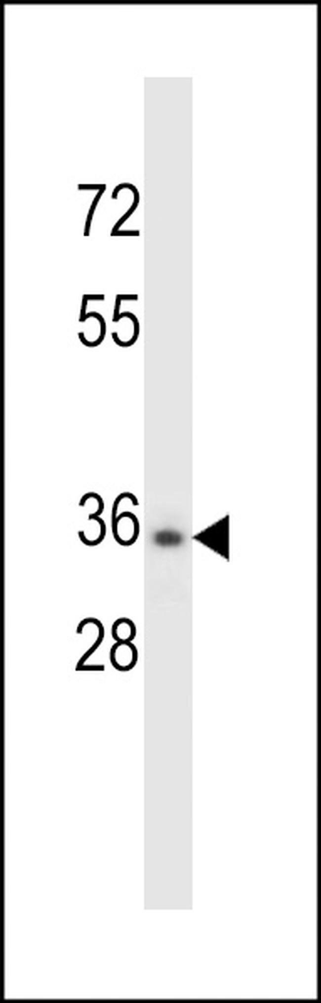 CELA3B Rabbit anti-Human, Polyclonal, Invitrogen 400 µL; Unconjugated