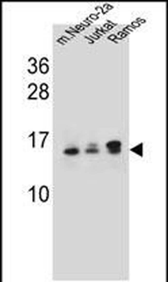 UBE2E2 Rabbit anti-Human, Mouse, Polyclonal, Invitrogen 400 µL; Unconjugated