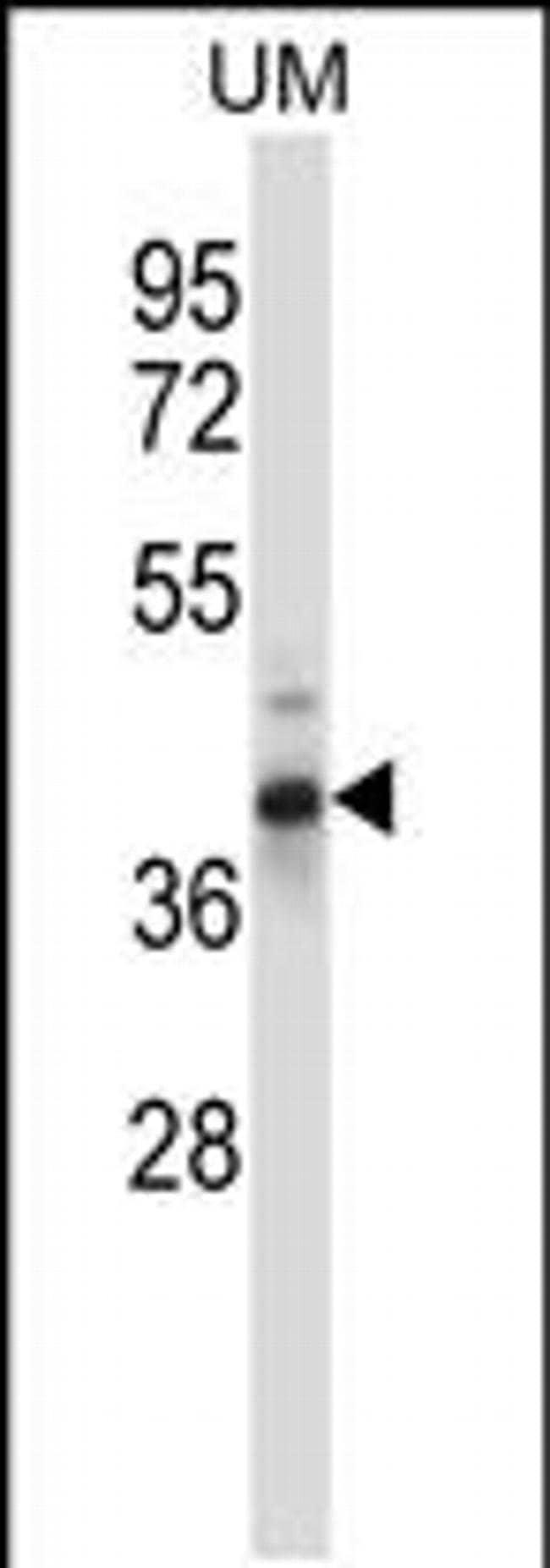 OAF Rabbit anti-Human, Polyclonal, Invitrogen 400 µL; Unconjugated